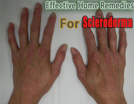 Effective Home Remedies for Scleroderma