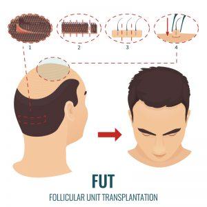 FUT-Hair-Transplant